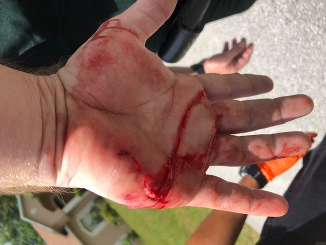 Flagler County Sheriff's deputy Jonathan Schmidt required stitches after being bitten on the hand by the same pit bull that bit Michelle Manfredi in Palm Coast's P Section. Schmidt was investigating that bite when he was attacked. (FCSO)