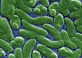 Vibrio vulnificus, the cholera-like bacteria.