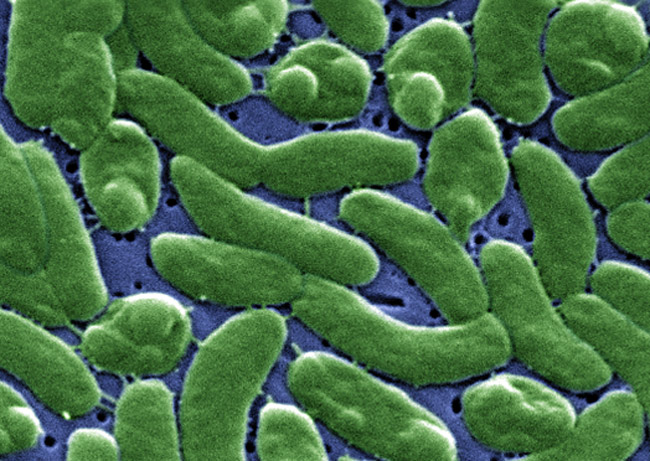 Vibrio vulnificus, the cholera-like bacteria, is not pretty.