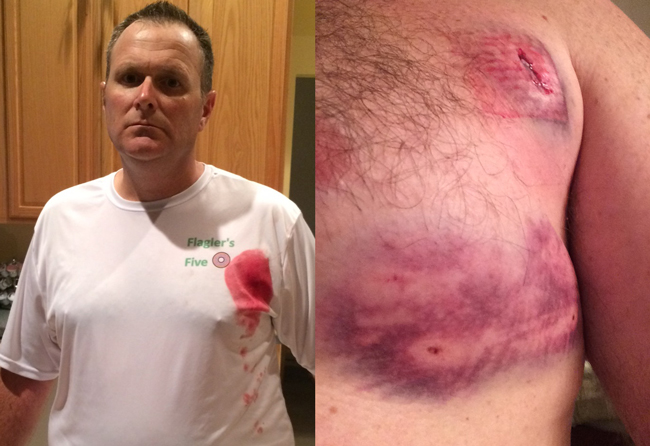 Cmdr. Steve Cole, a 20-year veteran of the Flagler County Sheriff's Office, after he was attacked Monday evening by a dog on a path along Matanzas Woods Parkway. (Steve Cole)