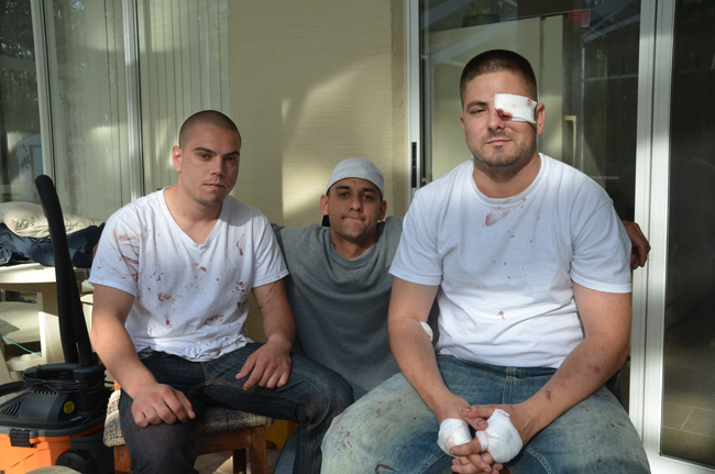 Bloodied but relieved: Vassili Mironov, right, with Joshua Auriemma, center, and Roman Dubinschi, just back from Halifax hospital Sunday morning, their wounds still raw. (© FlaglerLive)