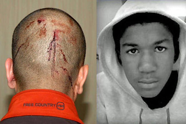 A picture of Trayvon Martin dead is not available.